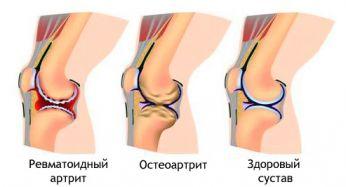 лечение суставов ног народными средствами в домашних
